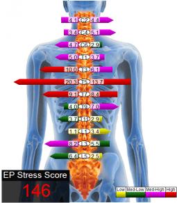 sEMG_EP_stress_score_Myovision_Life_Long_Clinic-e1444214696154